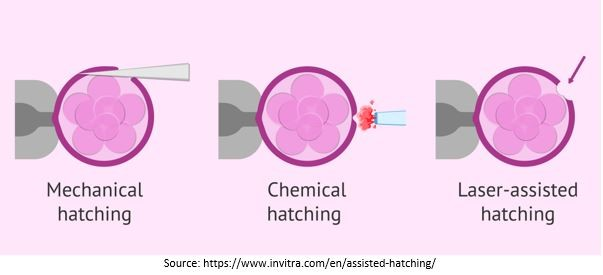 different methods of Assisted Hatching