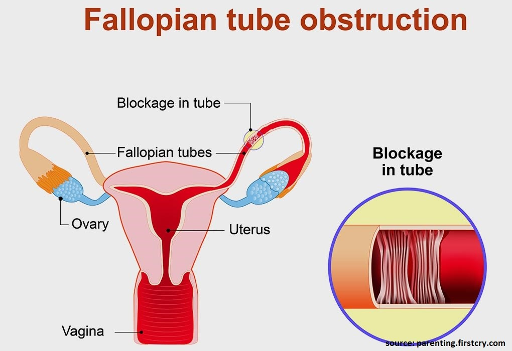 Fallopian tube blockage